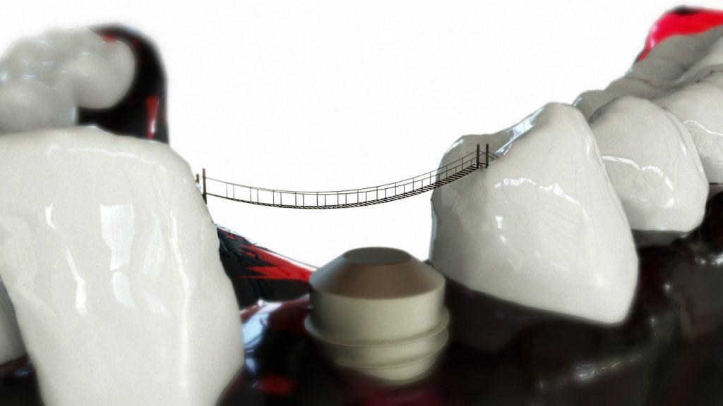 Tandarts werk - Implantaat