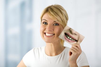 Tandarts werk - Smile make-over